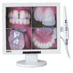 دوربین داخل دهانی و مانیتور ۱۷ اینچ TPC